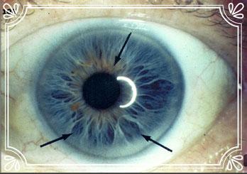 evaluación de iris con lupa y digital