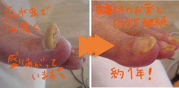 爪水虫と肥厚爪ケア