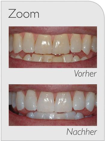 Philips Zomm vorher nachher Zähne weiß strahlend Bleaching