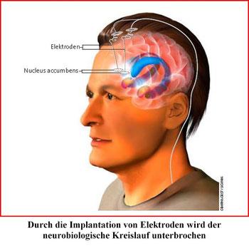 Statt Medikamenten wirkt bei der THS Strom , um die Impulse der Zwangsstörung zu verbessern.