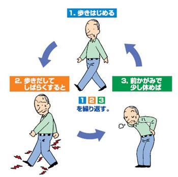 間欠性跛行は、①歩く→②痛みが出る→③前かがみで休むを繰り返す