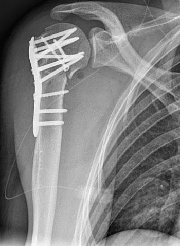 Osteosynthese einer Oberarmkopffraktur mit einer Platte aus Titan mit winkelstabilen Schrauben. Röntgenbild