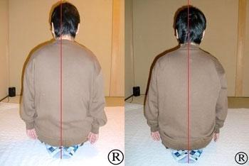 しんそう福井武生では、身体の歪みを調整し、肩、首、頭痛などを改善していきます。