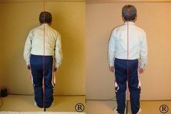しんそう福井武生では、手足のバランスから身体の歪みをチェック、調整し、腰痛、肩こり、不妊、座骨神経痛なども改善します。