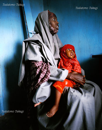In the regional clinic, Somali Tribes mother and daughter listen the medical guidance.