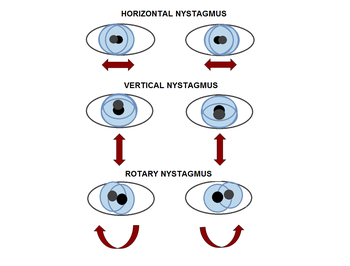 types of nystagmus