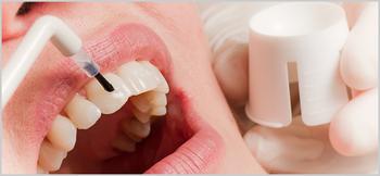 Gesunde Zähne durch Prophylaxe