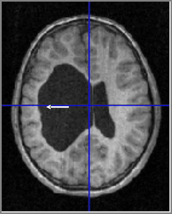 Kernspinaufnahme vom Gehirn eines Patienten mit reorganisierter Sprache. Man erkennt die linkshemisphärische Läsion: Ein großes Loch. Hier ist das Gewebe abgestorben, der Raum ist mit Gehirnflüssigkeit gefüllt.