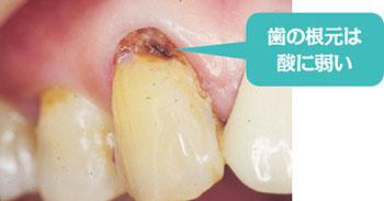 八戸 歯医者 知覚過敏 ホワイトニング セラミック