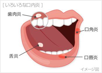八戸 歯科 口内炎 がん検診 口腔外科