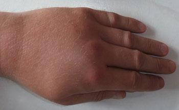 Schwellung nach einem Wespenstich; Kolditz, Nils;wikipedia.org