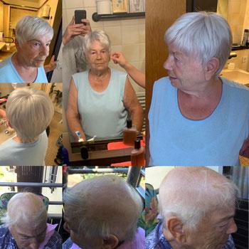 Perücke bei Haarausfall - Übernahme der Kosten durch Krankenkasse