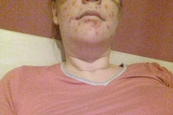 Bild von Silke* mit Wunden im Gesicht