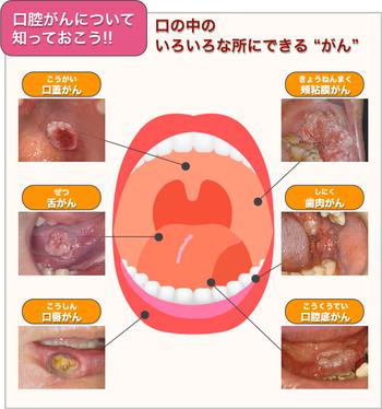 八戸 口腔癌 検診 口内炎 癌 粘膜疾患 ドライマウス