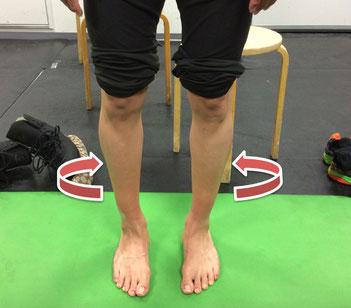 写真1)両脚のスネが外に回旋した状態