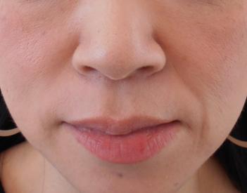 40代女性グロースファクターによるほうれい線治療前
