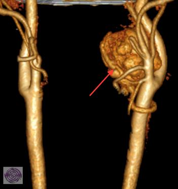 Gutartiger Glomustumor an der linken Halsarterie