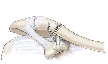 Operation der AC Luxation mittels Kunstbänder, die das Schlüsselbein nach unten ziehen; die Bänder werden auf einem kleinen Plättchen geknotet.