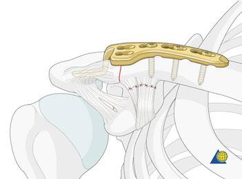 Operation der AC Luxation mittels Claviculahakenplatte: Die Platte drückt die Clavicula mit ihrem Haken nach unten