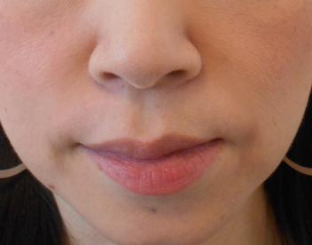 40代女性グロースファクターによるほうれい線治療1カ月後