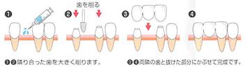 八戸市の接着ブリッジ くぼた歯科