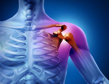 schouder problematiek, diagnostiek, schouderpijn, schouderklachten
