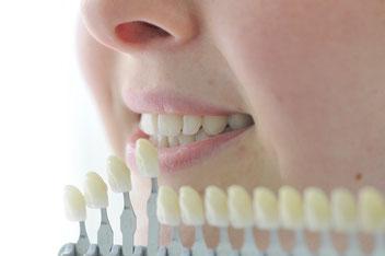 Die Zahnfarbe wird vor Beginn und nach Ende des Bleachings bestimmt.