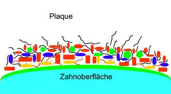 Plaque ist die Brutstätte für Karies und Parodonaterkrankungen