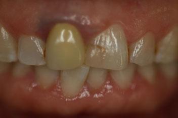 審美歯科の失敗