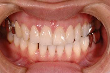 審美歯科治療の効果