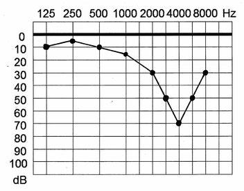 Tonaudiogramm eines durch Lärm Hörgeschädigten (c5-Senke)
