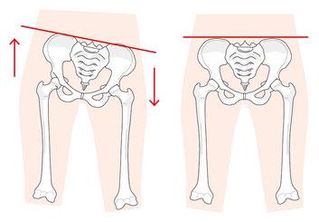 骨盤が歪んで坐骨神経痛が発症