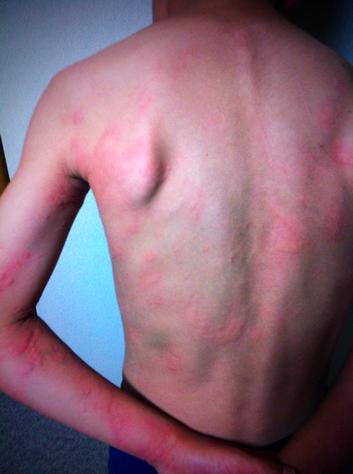 まぁ痛くないって言うし痒いだけっていうから病院に行くのを見合わせましたが、両腕の赤みがみょうに強く痛々しいので、「腕が特に赤こうなってんな~」って言うと、奥さん「あぁ!ムヒ塗ってんけどそれでかな?」 えぇー!マジかよォ!でしょ~(滝汗)w 原因もわかんないのに塗りますかね!それもムヒを!超ヒリヒリしたんで止めたらしいけど、感覚的にわかりそうなもんだけどな~www 湿疹&てんねん話でしたw  *寝る間際まで患部を氷で冷やして対処  **朝起きると半分くらいまで減ってました。