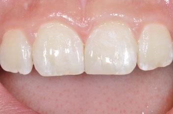 Moderne Materialien und Techniken erlauben es, Zahnsubstanz zu schonen.