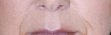 Nasen Mund Linien