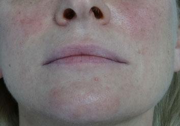 49-jährige Patientin: Wunsch nach etwas volleren Lippen