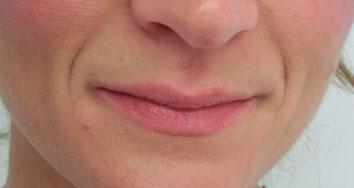 39 J, Wunsch nach mehr Lippenvolumen