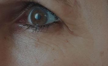 deutlich sichtbare periorbitale Fältchen bei einer gut 40-jährigen Probandin