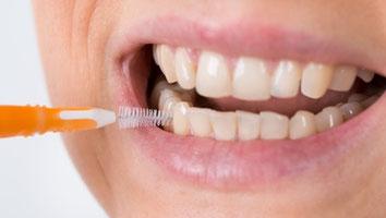 ParoSphère | Hygiène orale. Crédit photo: © Andrey Popov