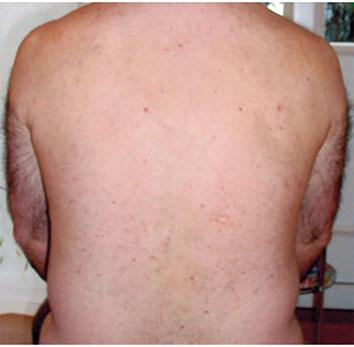 nach 8 Behandlungen haarfrei
