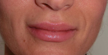 Lippen aufspritzen, Hyaluron LIppen