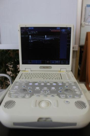 おおつか接骨院の超音波画像観察装置