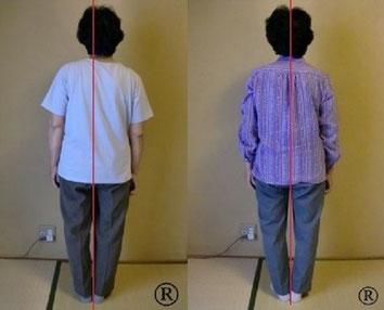 しんそう福井武生では、手足のバランスから身体の歪みを調整し、姿勢なども改善していきます。