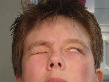 unvollständiger Augenschluss (Bild: Andrea Kamphuis, CC-BY-SA 4.0)