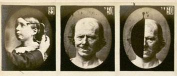 """Bild aus: """"Mécanisme de la Physionomie Humaine"""", 1862 von G. Duchenne"""
