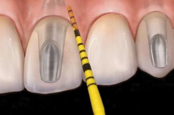 Sonde en plastique pour le sondage péri-implantaire.