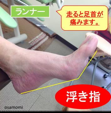 浮き指ランナーは、足首痛・ハムスト肉離れになりやすい!昭島市のオサモミ整体院