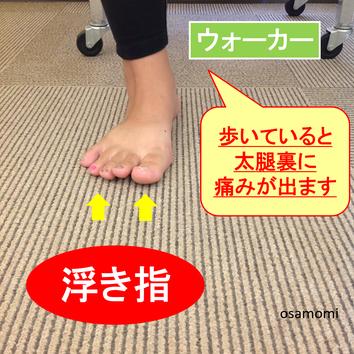 浮き指ウォーカーは、足首痛、ハムスト痛になる。昭島市のオサモミ整体院