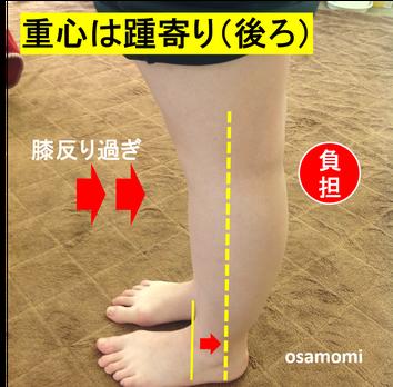 膝痛、変形性膝関節症、浮き指は、昭島市のオサモミ整体院。