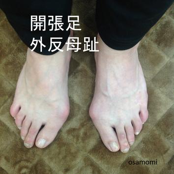 オサモミ整体院 外反母趾 開張足